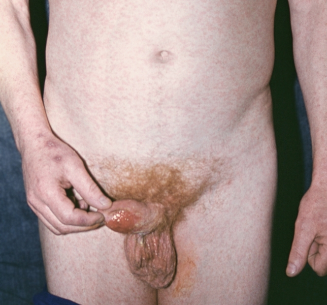 Шанкр на члене при сифилисе